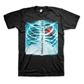 X-Ray Asterisk Heart